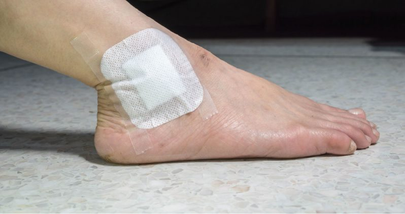 Foot with bandage